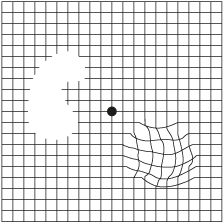 picture relating to Amsler Grid Printable titled Age-Comparable Macular Degeneration Indications Indications Vitalux