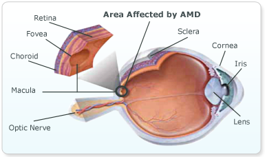 Macular Degeneration Symptoms & Treatment